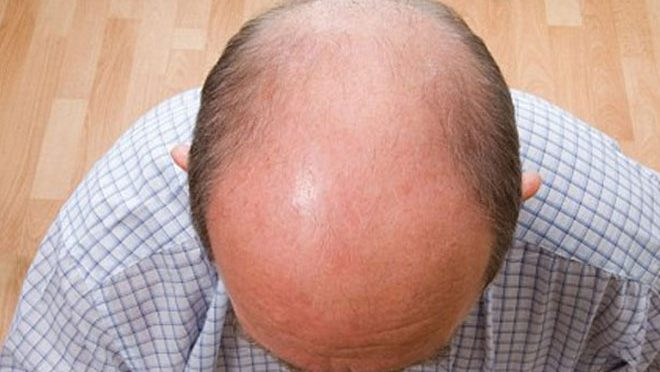 گرتے بالو ں سے پریشان حضرات کیلئے انتہائی مفید علاج ۔۔آپ بھی ضرور آزمائیں